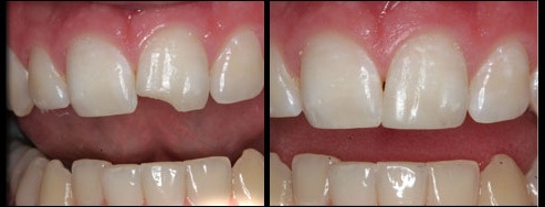 Las Vegas Dental Bonding Marielaina Perrone DDS