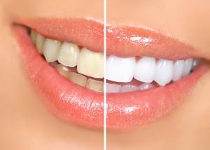 Marielaina Perrone DDS Las Vegas Teeth Whitening